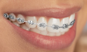 braces affordable